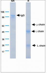 Figure_1._SDS-PAGE