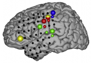 rapid-brain-mapping-photo